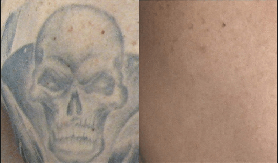 BA_PicoSure_Hall-Plastic-Surgery_Post4Tx_Tattoo