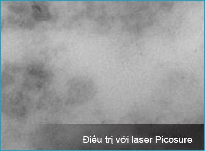 picosure_laser-01