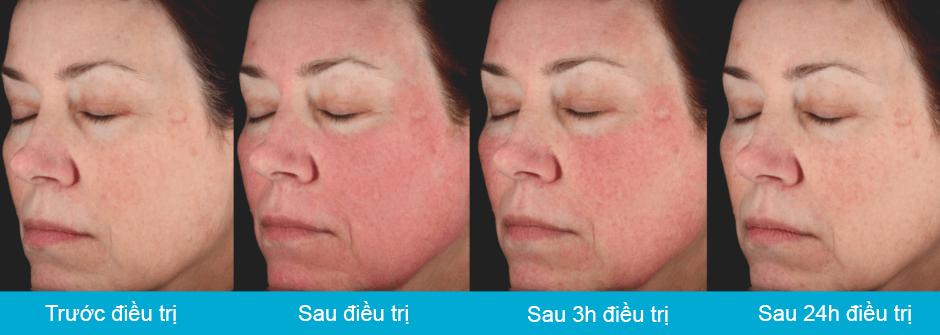 picosure_face_transition_tre-hoa-da